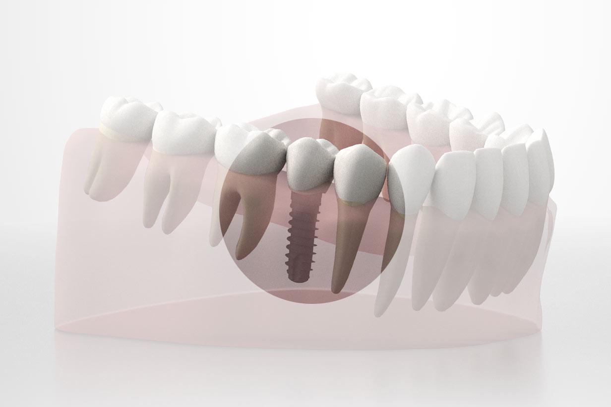 cosa è impianto dentale